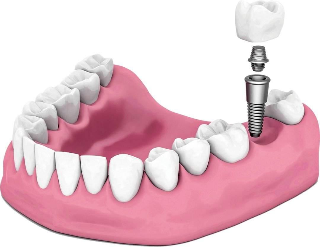 坐标深圳:想咨询一下种植牙是否可以一直使用