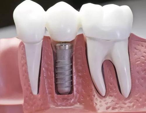 深圳种植牙专家科普:种植牙可以像真牙一样咬硬物吗