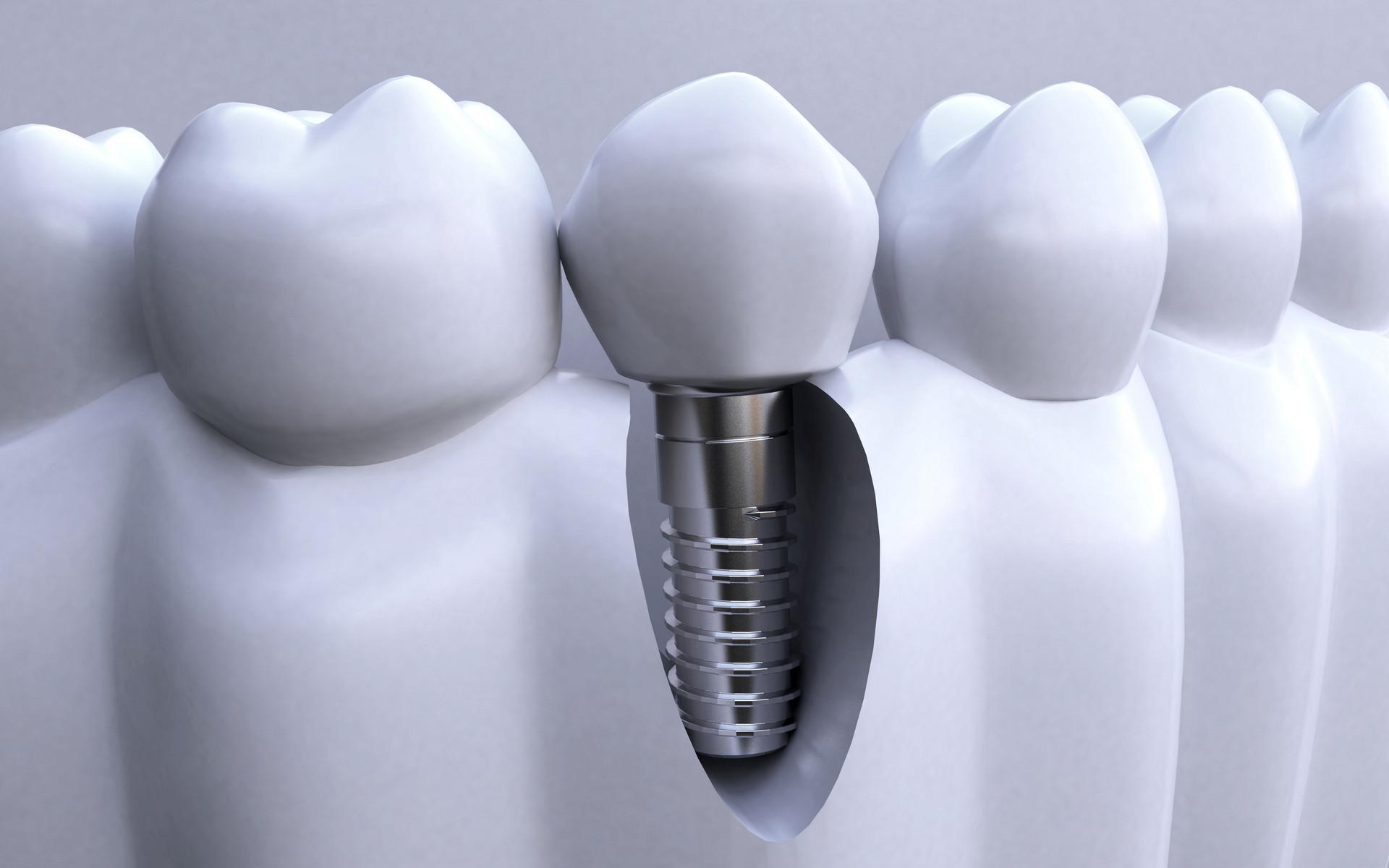 深圳种植牙多少钱才不会被坑 深圳种一颗牙大概的费用是多少?